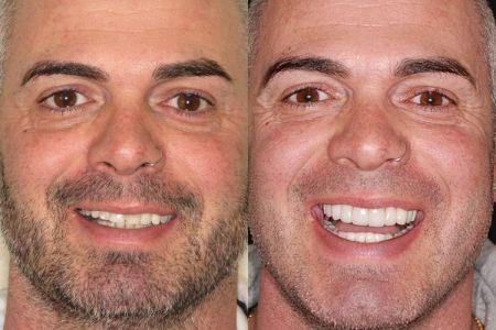 A Woodbridge Vaughan Dental Makeover